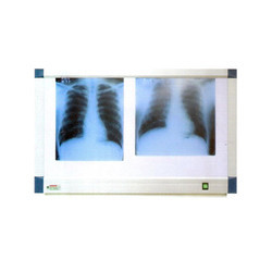 84-0102F X Ray View Two Screen