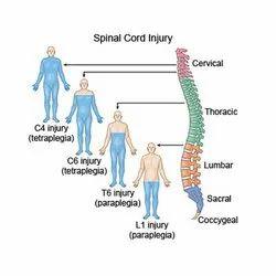 Spinal Cord Injuy