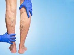 Arthroscopic Shoulder Subacromial Decompression Surgery in Civil