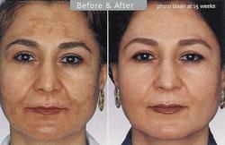 Skin Pigmentation Treatment