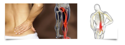 Homeopathy Treatment Services For Sciatica