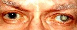 Cataract Lens Surgery