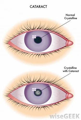 42b0c7ed8ea Cataract Surgery in Jodhpur