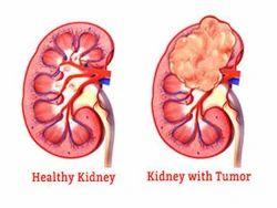 Kidney Cancer Treatment Service