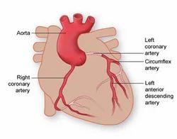 Coronary Regression Program