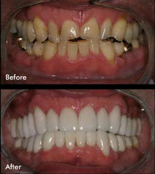Teeth Whitening In Pune ट थ व इटन ग प ण