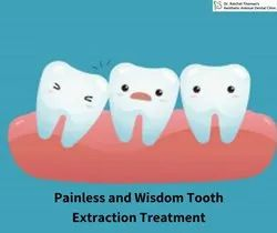 Advanced Painless and Wisdom Tooth Extraction Treatment