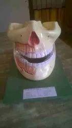 Natural Human Jaw Fiberglass Model, For Educational, Size: Standard