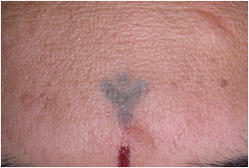 Tattoo Removal Treatments Service