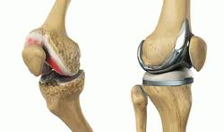 Surgical Procedure Knee Replacement Services