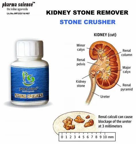 Kidney Stone Treatment Medicine At Rs 1599 Bottle À¤— À¤° À¤¦ À¤• À¤¦à¤µ Pharma Science The Indian Ayurveda Bhopal Id 20421373755