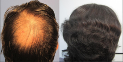 Hair And Scalp Diagnosis Treatment Service