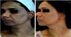Acane Black Peel Treatment