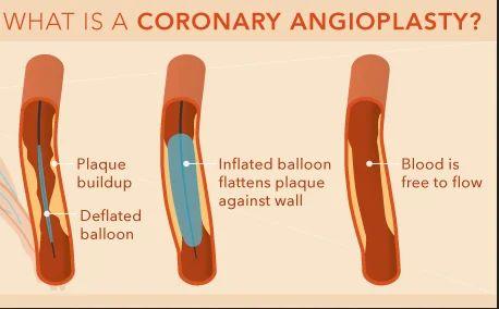 angioplasty surgery in nashik mumbai naka tidke colony by healthy
