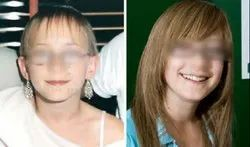 Hair Replacement for Children
