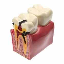 Kay Kay Dental Carries Model