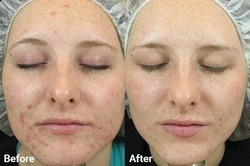 Skin Whitening Treatment for Acne and Black Spots Skin