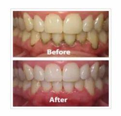 Gum Treatments Periodontics Service