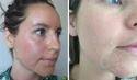 Cosmelan Depigmentation Peel