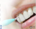 Tooth Cleaning Treatment