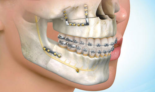 Oral And Maxillofacial Surgery In Delhi Okhla By India Meditourism Id 19861900755