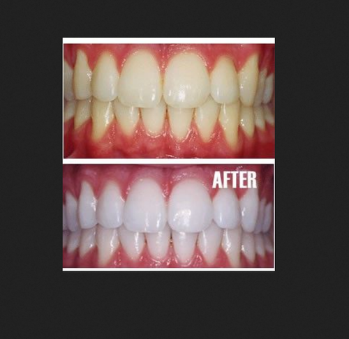 Teeth Whitening Treatment Services in Safdarjung Enclave