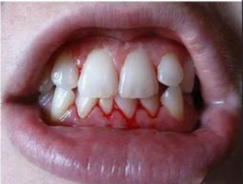 Diabetes Dental Care, डायबिटीज केयर