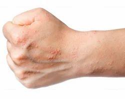 Thol Noigal Skin Alergies Treatment Service