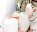 Tooth Extraction Treatment