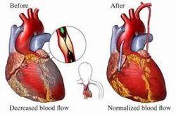 Total Arterial Bypass Surgery