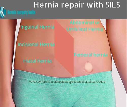 Single Incision Laparoscopic Hernia Surgery in Police Colony