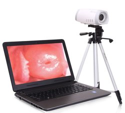 FBLP3500 Laptop Video Colposcope