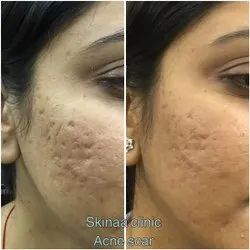 10 Am To 7.30 Pm Acne Mark Removal Treatment Service, Jaipur