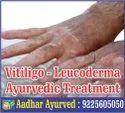 Leucoderma Ayurvedic Treatment