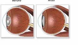 Cataract Treatment Service
