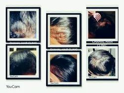 Male and Female Falling Hair Treatment Service