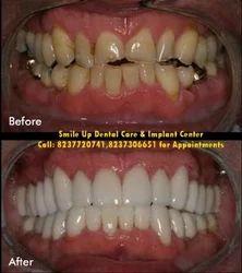 Kids Dental Treatments in Pune