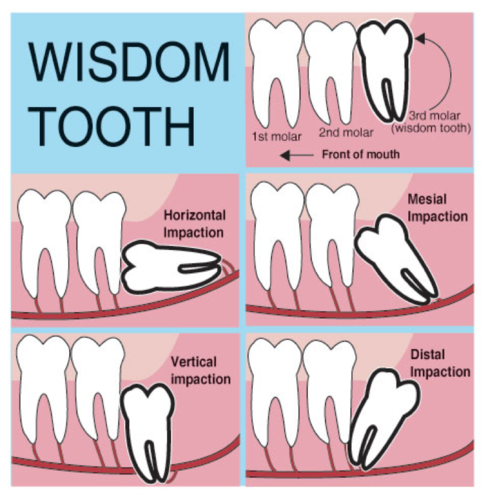 Wisdom Tooth Extraction Treatment Service In Koregaon Park Pune Dr Purnata S Dental Cosmetic Care Id 19134928512
