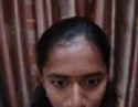 Pimples Disease