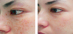 Acne Or Pimples Diseases Treatment Service