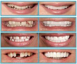 Cosmetic Smile Designing Consultation