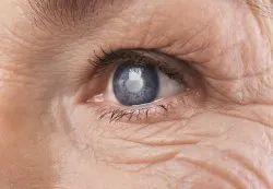 Surgical Bladeless Lasik Bladeless Cataract Surgery