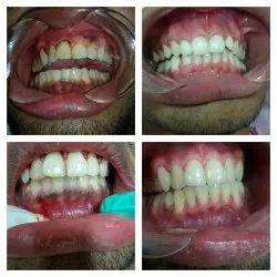Periodontics Dental Treatment Service