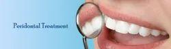 Periodontics Treatment Service