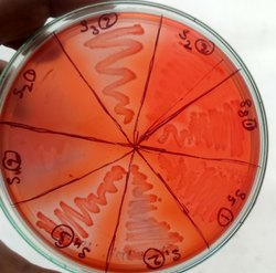 Industry Antmicrobial Testing, Analysis Type: Micro Structural Analysis, India