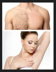 Laser Hair Removal Service ल जर ब ल क हट न
