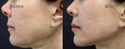 Filler Treatment For Jawline Correction