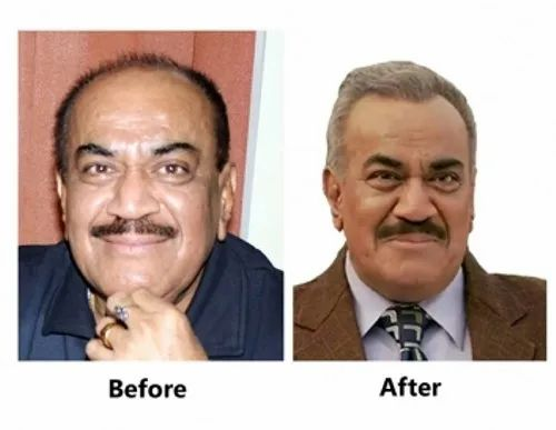 Dr A S Clinic Service Provider Of Celebrities Hair Transplant Services Hair Transplant In Men Services From Delhi