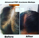 PRP for Hair Loss Service