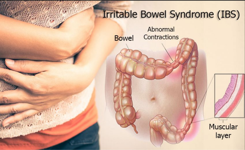 Irritable Bowel Syndrome Treatment Service in Ludhiana, Sampoorna ...